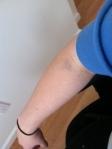 a1c_bruised_arm