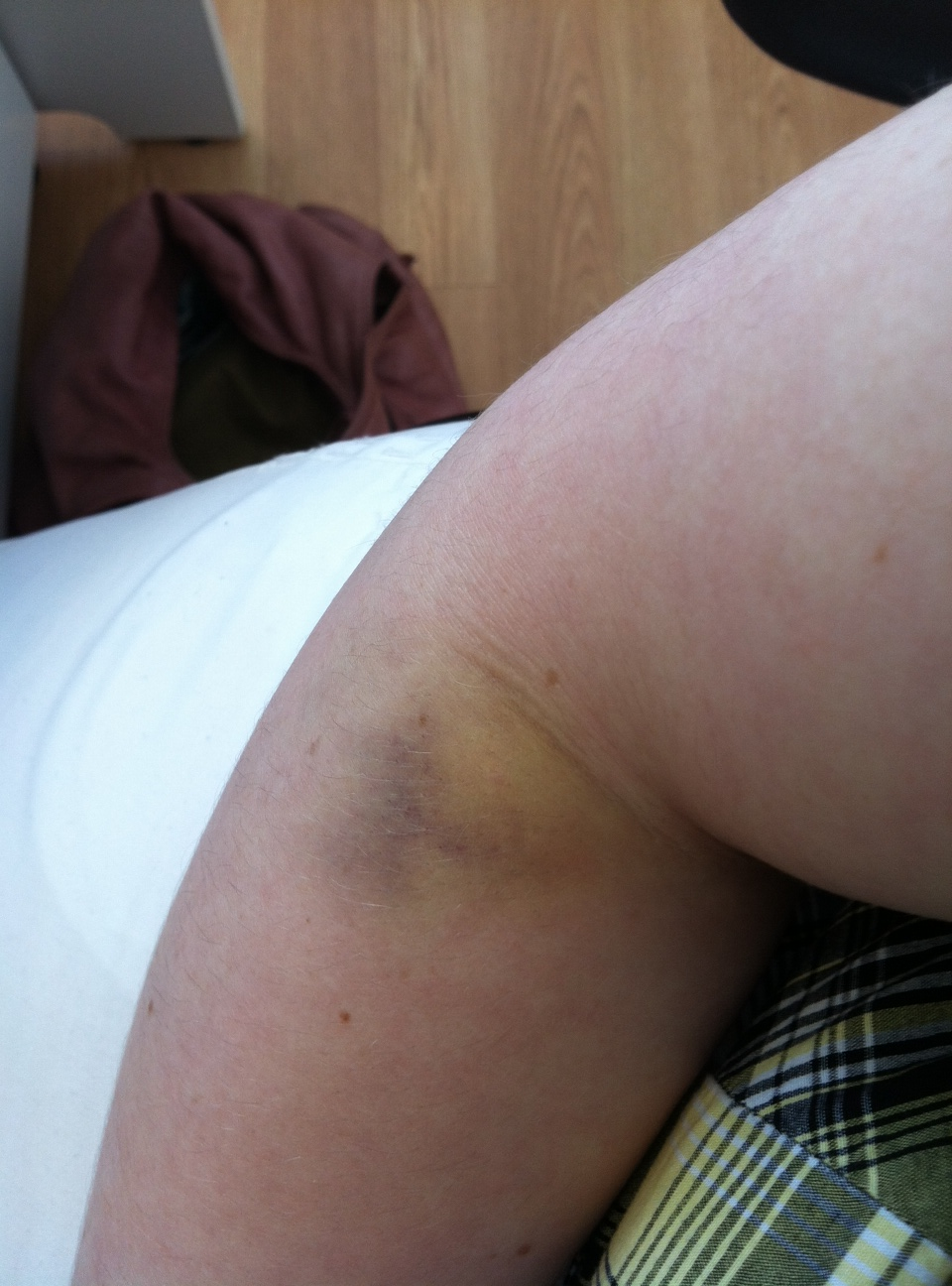 Bad Bruise On Arm
