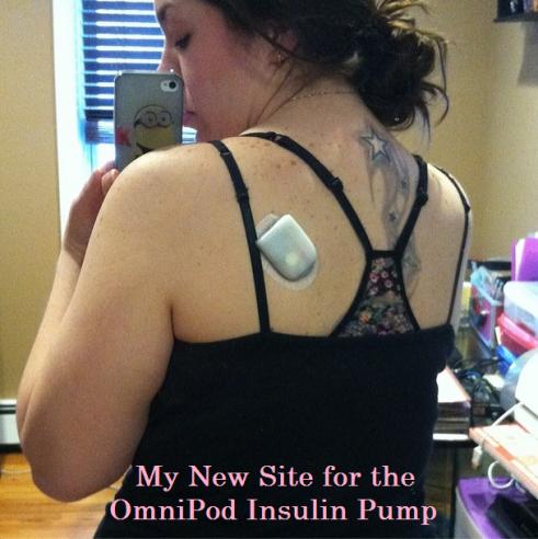 Instagram - Omnipod Insulin Pump on Type 1 Diabetic's Back! | www.iamatype1diabetic.com