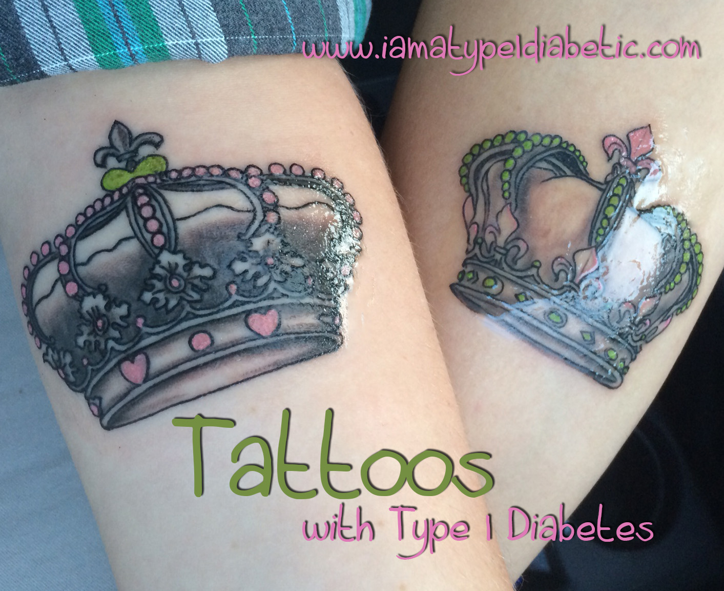 Can People With Diabetes Get Tattoos and Piercings What to Know Before You Go images